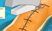 膝關節手術